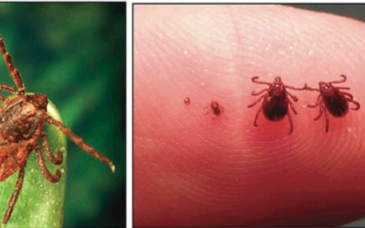 Rocky Mountain Spotted Fever: Let's Talk Ticks and Bacteria