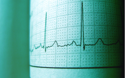 The EKG: Translating the Interpreter